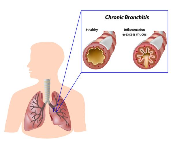 Is there any cure for hypoxemia in chronic bronchitis?