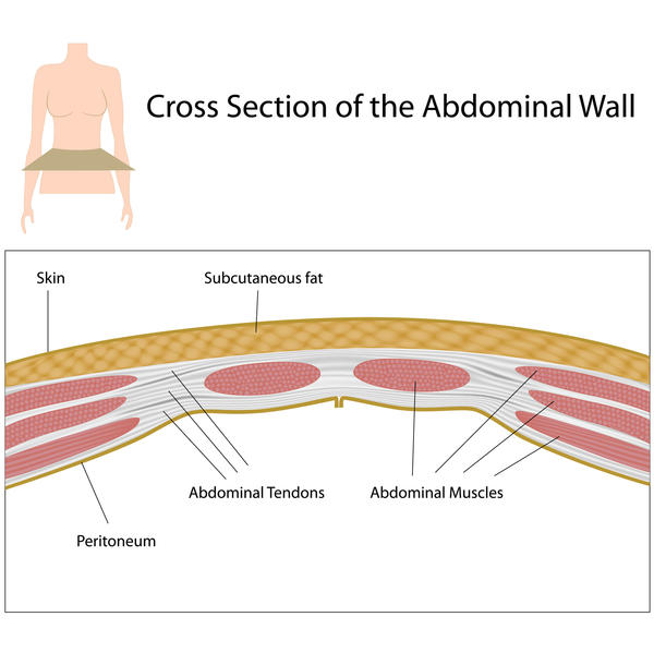 What do abdominal adhesions feel like when you touch or rub your abdomen?