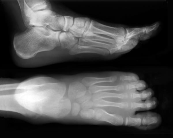 Spontaneous lisfranc sprain/tear level 3. Non w.b 3 wks/boot to date+appt w ortho in few days. Pos result of previous knee injury? No recent trauma.