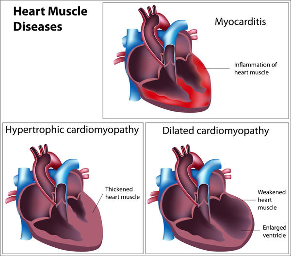 Hypertrophic cardiomyopathy and myocarditis ---whats the difference?