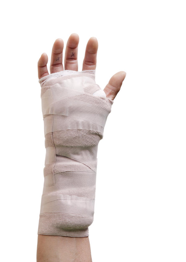 Why shouldn't you wear a sling after carpal tunnel surgery?