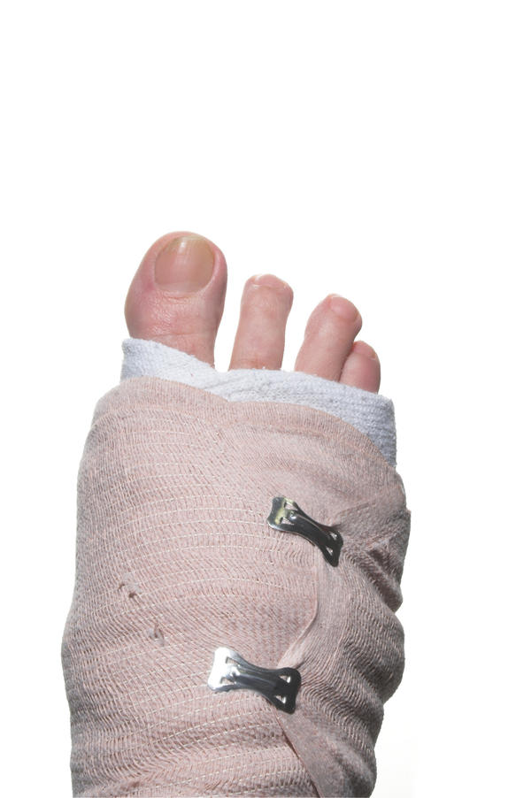 What are some of the symptoms of a broken foot?