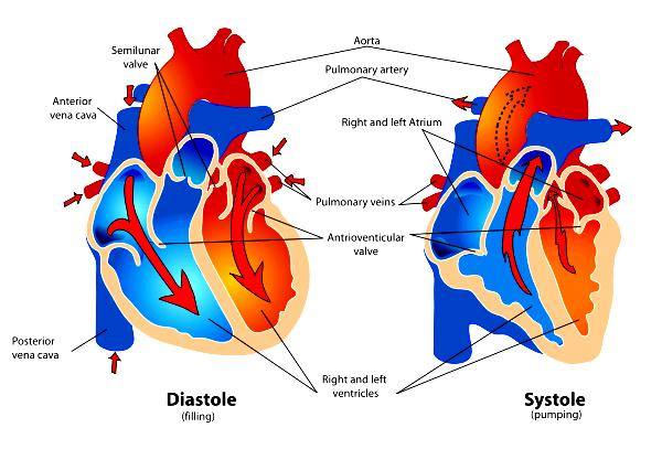 What causes right-sided heart failure?