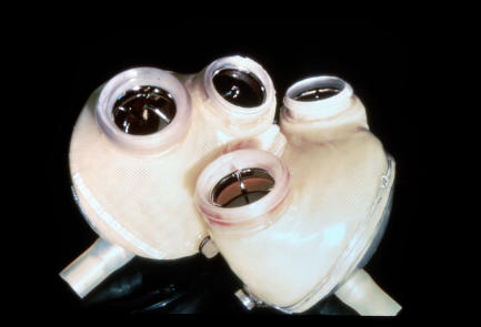 What are the pros and cons of having an artificial heart?