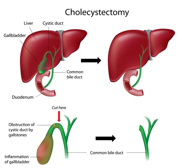 During cholecytomy for gallbladder sludge removal, will doctors see or find anything new? Did sludge cause cyst in liver