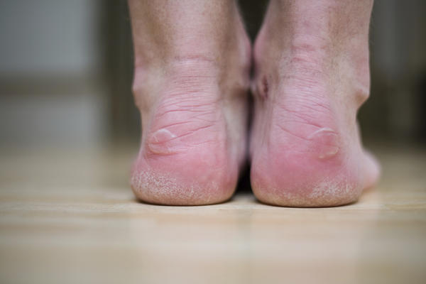 How many days should it take an open blister on foot to heal?