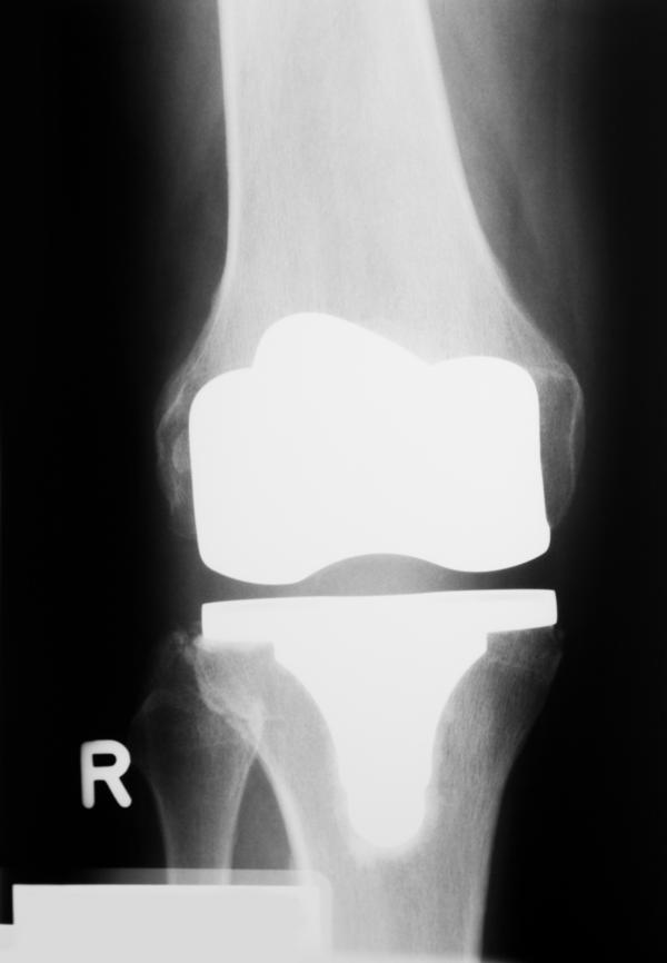 How do you know if you have an infection in your knee after a partial knee replacement?