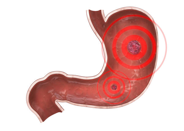 What are the tests for peptic ulcer?