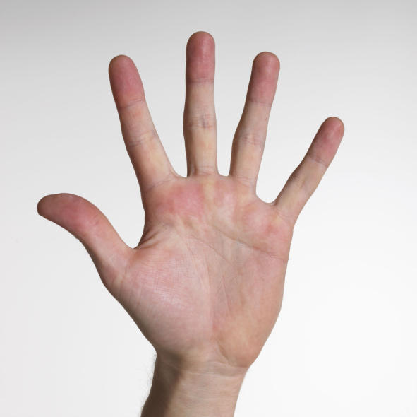 Are red hands a symptom of raynaud disease?