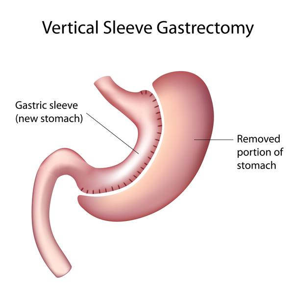 What is the difference between a sleeve gastrectomy and a gastric plication?