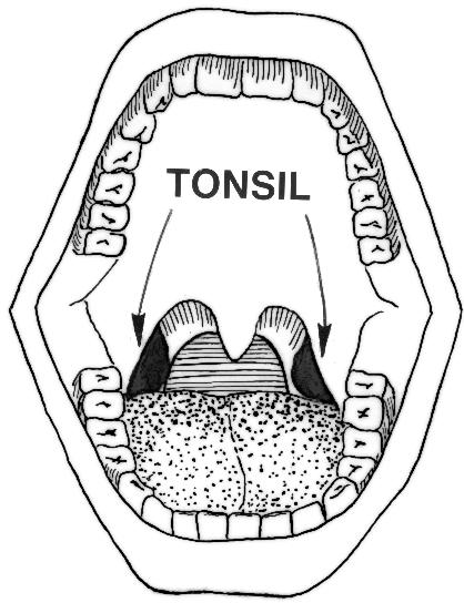 What're the most common problems affecting the tonsils and adenoids?