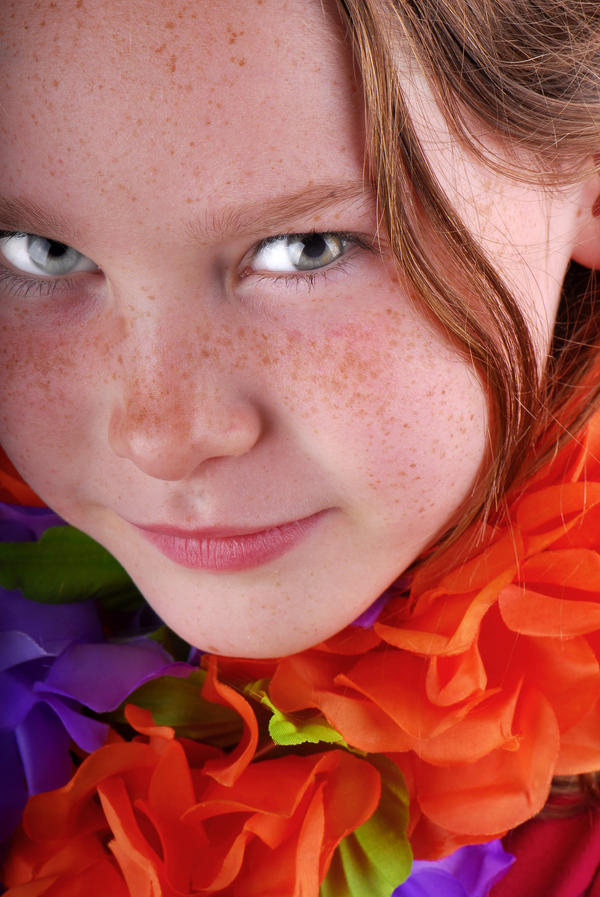 Which is the best topical  medication for fading freckles?