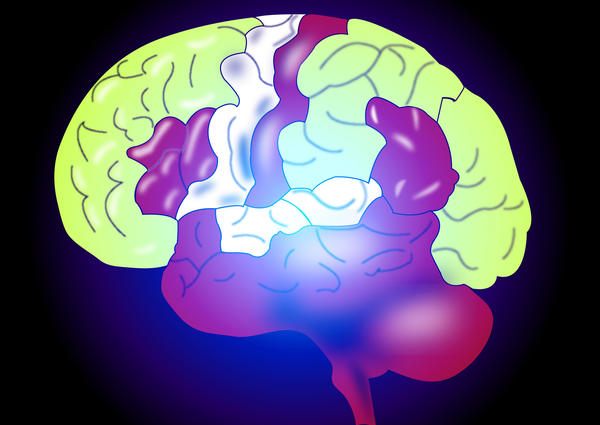 How can a huntingtons disease brain differ from a normal brain?