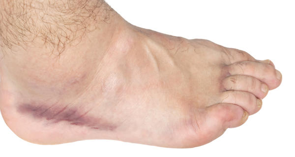 What are the possible causes of swollen feet and bloating?