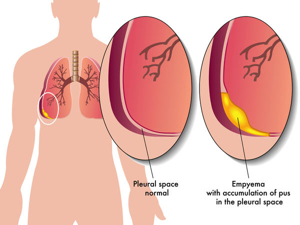 What is dry tap in pleural tapping means?