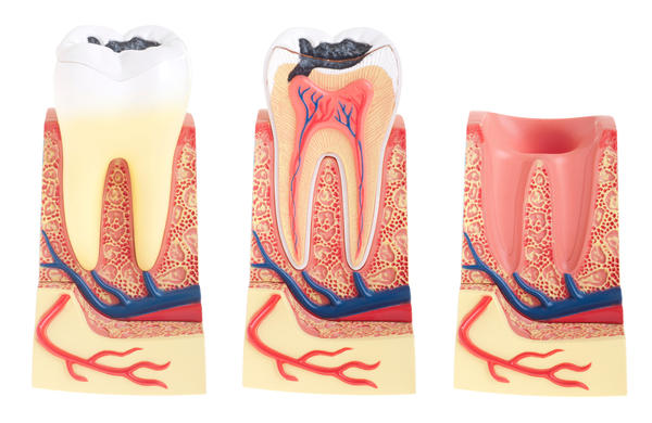 Can I brush my teeth after a root canal? I have the temporary filling.
