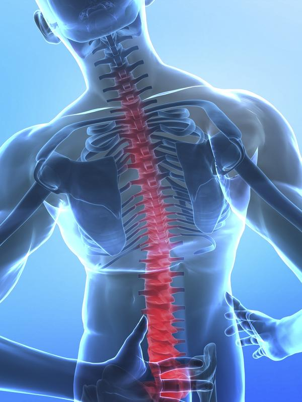 What is the treatment for ankylosing spondylitis ? Injury due to slip & fall 2001, had p/t. Three herniated discs (l3/4/5)- caused foot to swell.