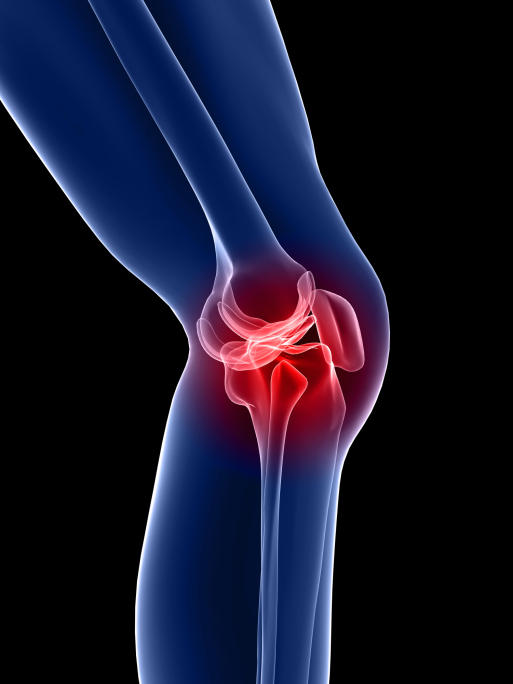 Did you experience knee pain after arthroscopy?