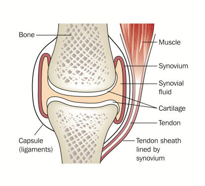 What are tendon ruptures?