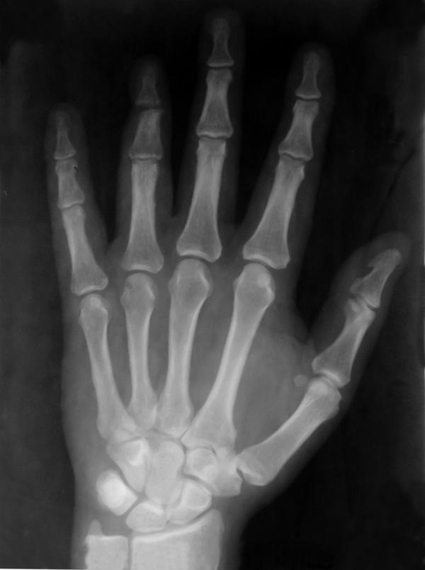 I had a bone scan yesterday but could only see the computer when they did my hands . Both my wrists and knuckles where bright white . Is this normal ?