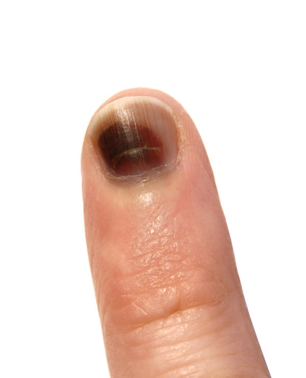 I noticed that I have a pea-sized black spot on my thumb and I am not sure what it is. It is slightly raised like a blister, but does not hurt.