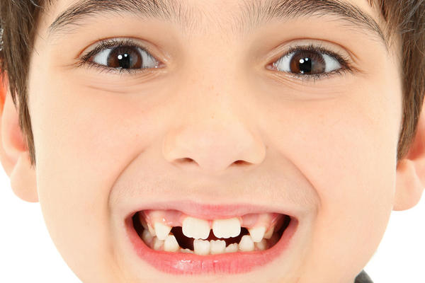 At what age will a boys front top teeth stop growing?