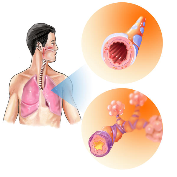 How can I manage chronic bronchitis?
