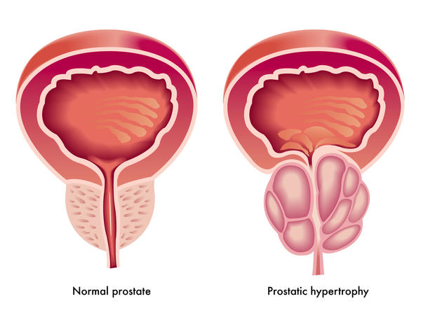Does an enlarged prostate usually indicate prostate cancer?