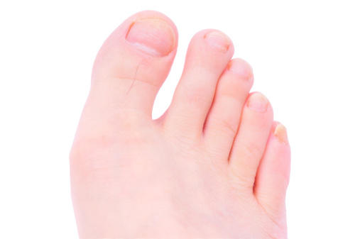 What is a reason for a painful little toe?