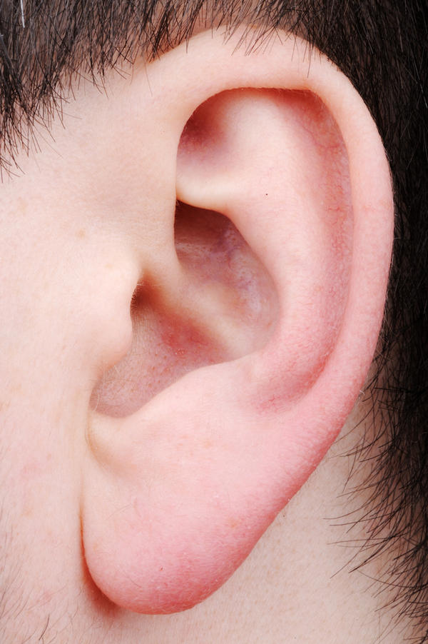 Can stretched earlobe be repaired?