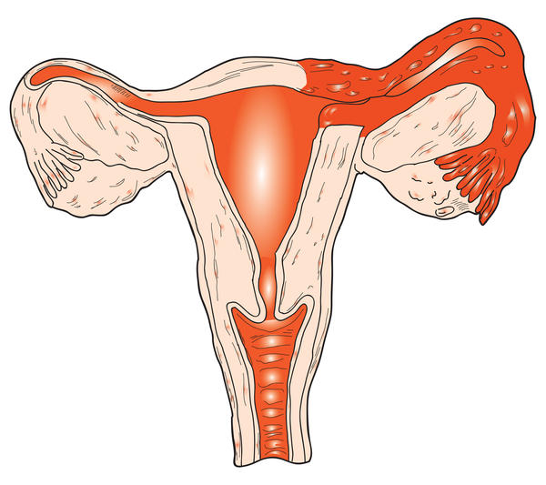 After a total abdominal hysterectomy, when will the symptoms of menopause start?
