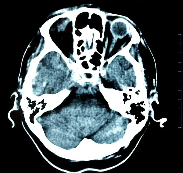 Will a ct scan with contrast show phlegm or if you have a headache?