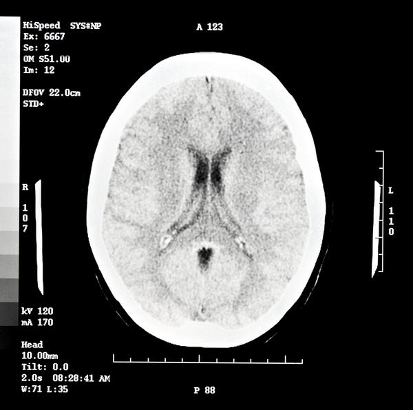 Can a head CT scan (with and without contrast) radiation cause a brain tumor to grow and cause symptoms in 2 years and 8 months or 3 years? Possible?