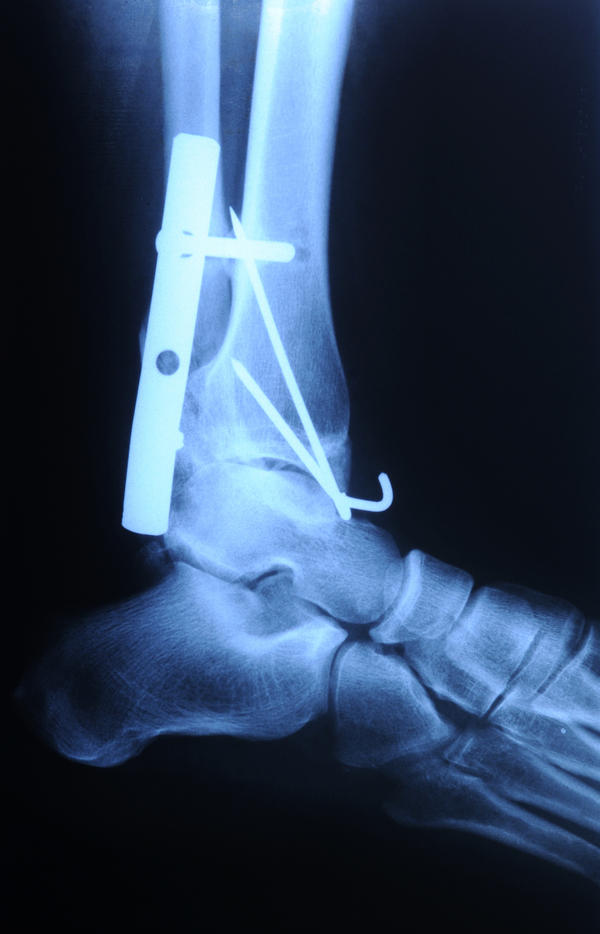 Can the staples and screws in feet from bunion surgery be causing pain 6 months after surgery?