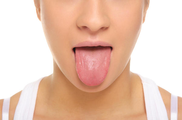 I get a white tongue and it smells, what could this be and how do I cure it?