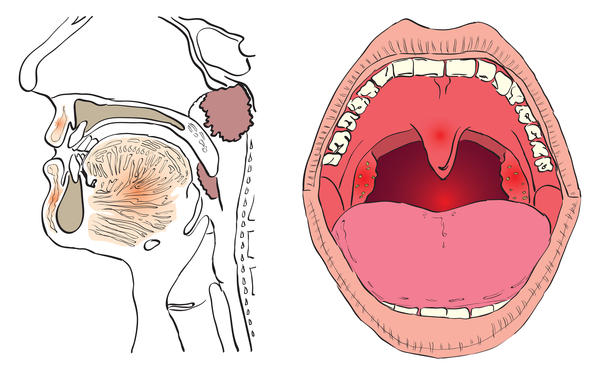 Can tonsils re-grow?