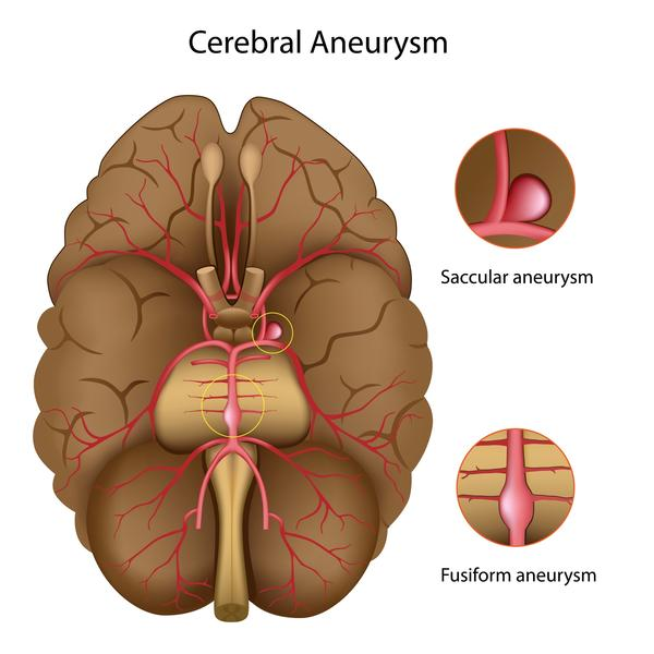 Can having high blood pressure for  a long period of time cause a brain aneurysm?