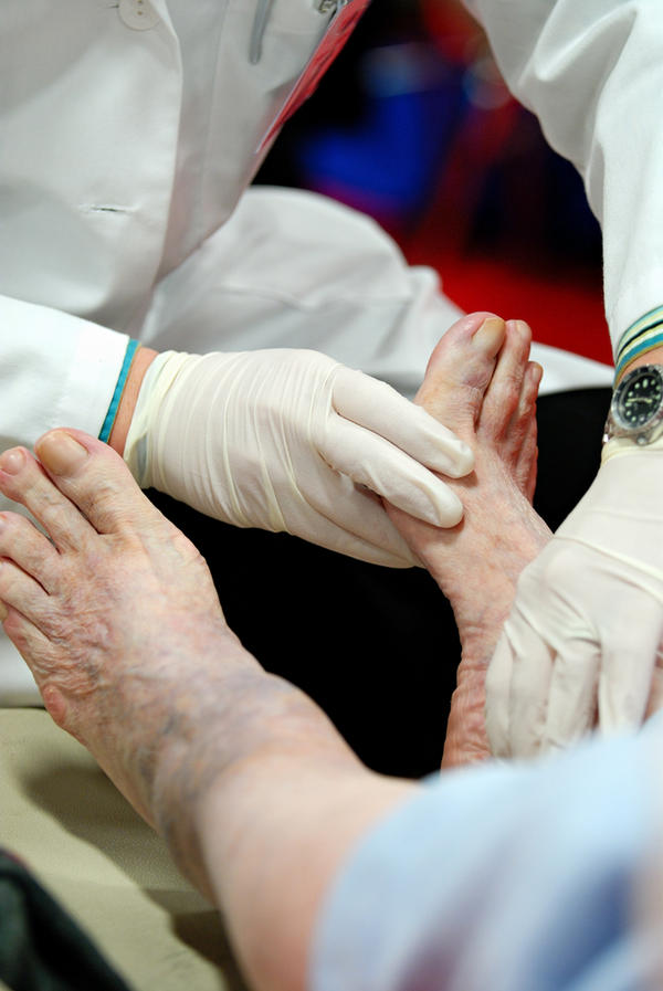 Scabs on diabetic foot - how to treat them?