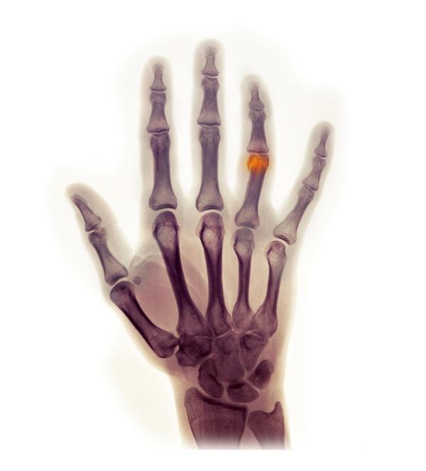 Cast For Broken Ring Finger