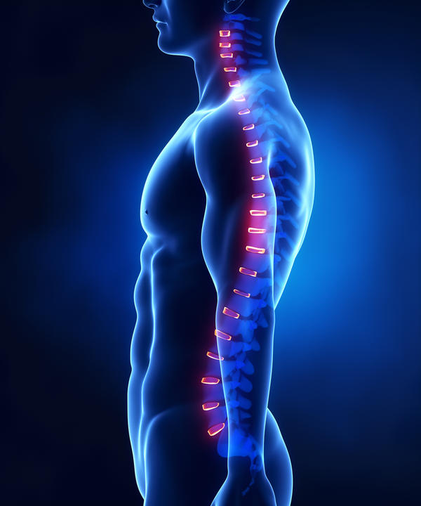Can an accident cause loss of lumbar lordosis?