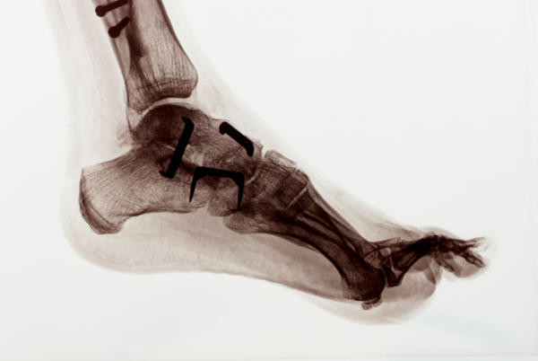 How could the pain of foot arthritis present?