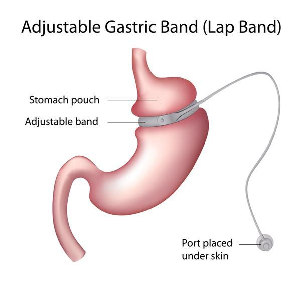 What is the difference between a lap band and liposuction?