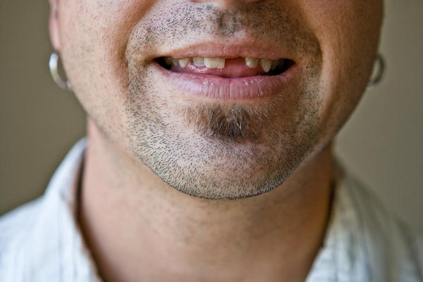 What cosmetic dental procedures are available for people who have missing teeth?