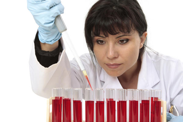 What type of test is for haptoglobin: blood chemistry or hematological?