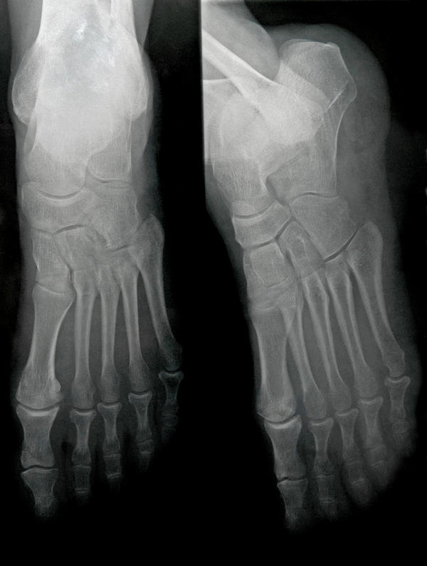 I sustained a talus fracture that's healing well but I have severe pain. What should I do?