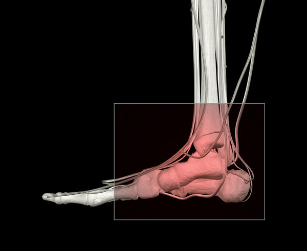 What is a sprain versus a broken ankle?