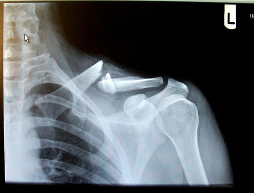 What is the difference in healing time between a broken collar and a fractured collar bone?