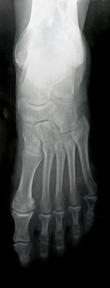 What does it mean if I have a talus fracture & torn lateral ligaments in my foot?