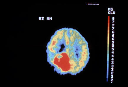 How many number of pet scans can be used safely if patient insist  pet for detecting metastatic lesions after removing primary cancer?
