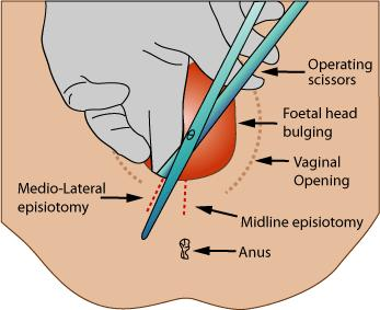 What kind of complications might happen from an episiotomy?